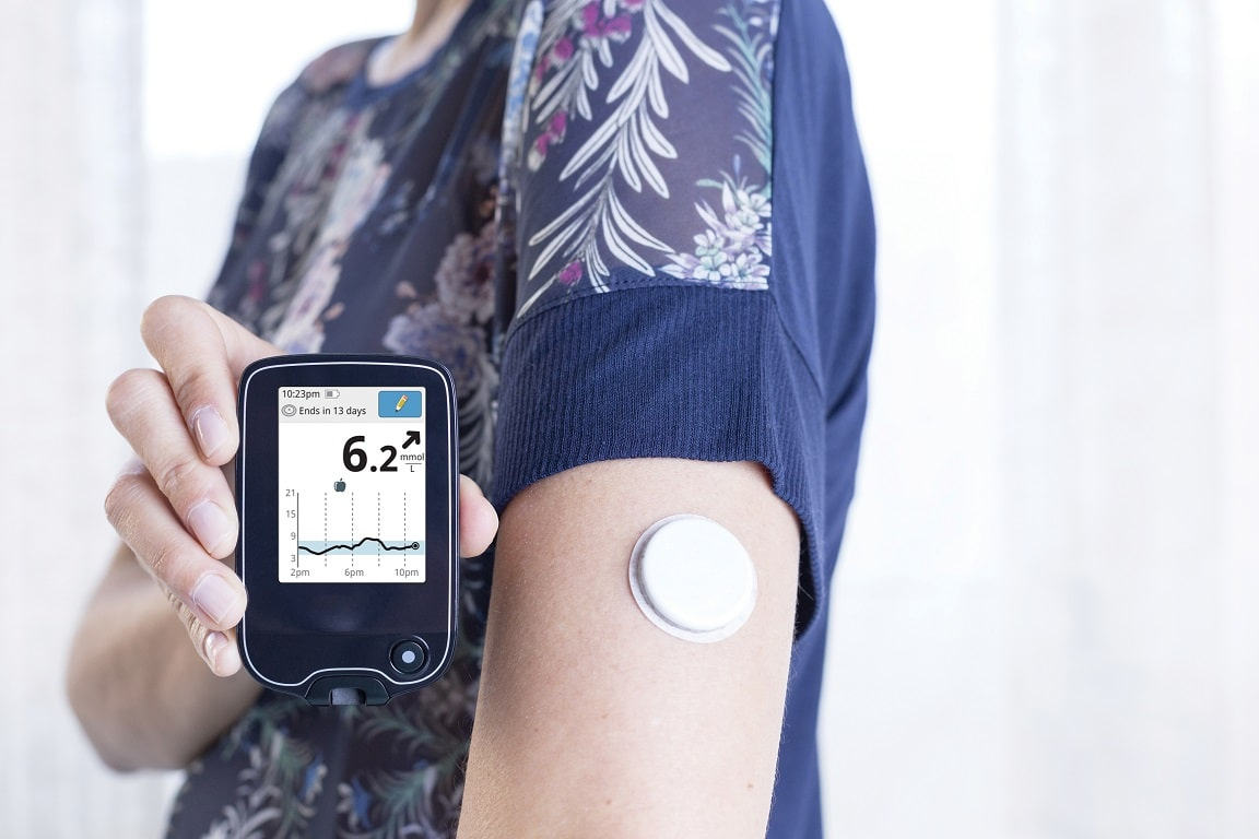 close-up-of-glucose-monitor-system-reader-on-young-womans-arm_shutterstock_268846151_300r_rgb_modified-numbers_lr